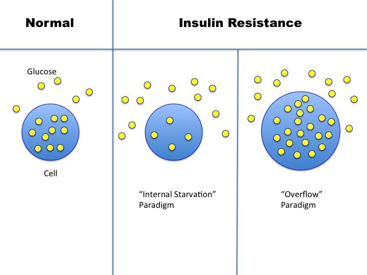 What Exactly Is Insulin Resistance T2d 23 Intensive Dietary